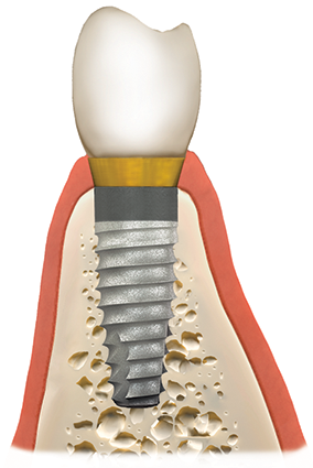 dental implants st austell