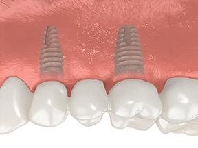 dental implants cornwall